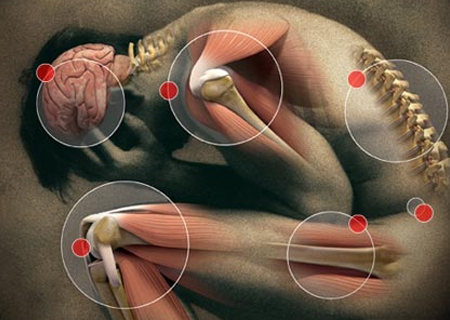 Trigger Point Pain - Trigger Point Therapy